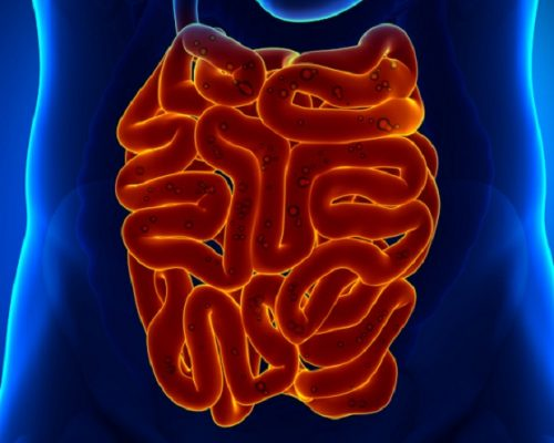 Colonic diverticular disease patients can be at risk for dementia: Study