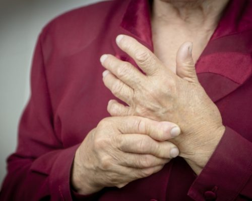Preventing arthritis in hand with exercise and natural remedies