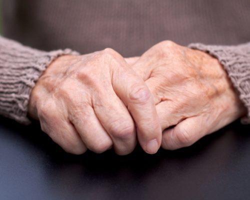 Managing hepatitis C with joint pain, rheumatoid arthritis, and arthralgia