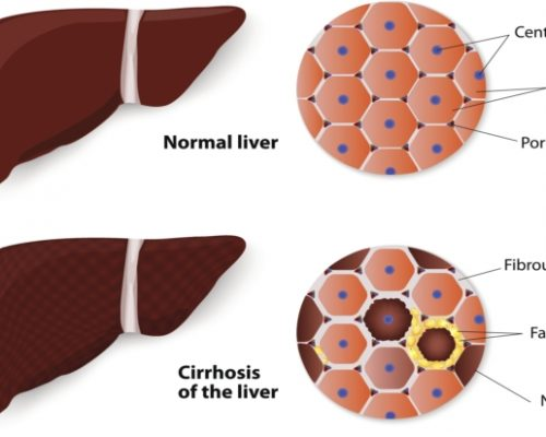 Liver fibrosis or scarring, leading cause of liver cirrhosis can be prevented with asthma drug: Study