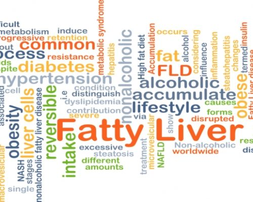Non-alcoholic fatty liver disease mortality risk predicted by measuring steatosis, activity, and fibrosis