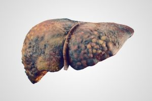 Primary biliary cholangitis