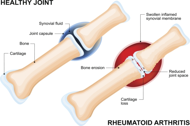 Rheumatoid arthritis, inflammatory joint disease patients at higher risk for cardiovascular disease
