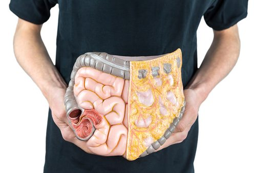 Enzyme may prevent tumor growth in colorectal cancer (1)