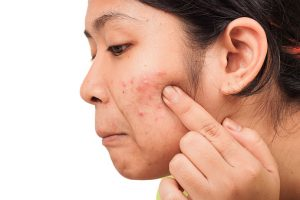 acne-in-women