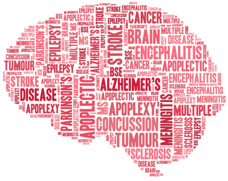 alzheimers-disease-concussions