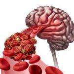 blood-clots-in-the-brain-300x262