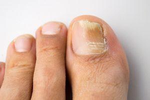 brittle-toenails