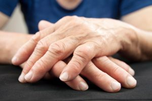 heart-failure-in-rheumatoid-arthritis-patients
