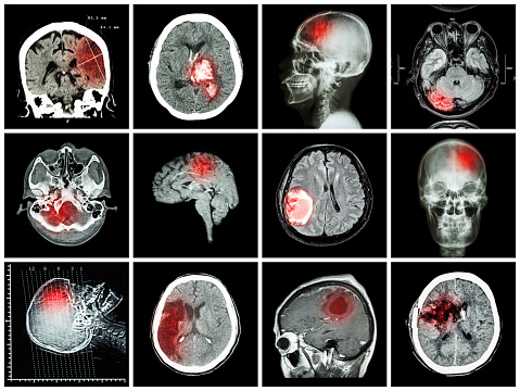 lacunar-infarct-stroke