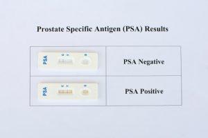 psa testing prostate cancer