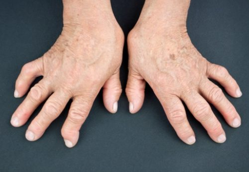 Psoriatic arthritis vs. rheumatoid arthritis: Differences in symptoms, causes, and treatments