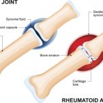 Rheumatoid arthritis, inflammatory joint disease patients at a higher risk for cardiovascular disease