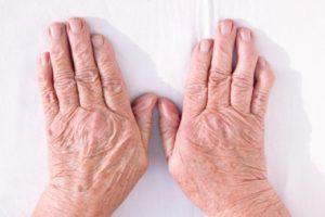 Natural Treatment Rheumatoid Arthritis Hands