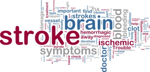 Understanding silent stroke, a leading cause of vascular dementia