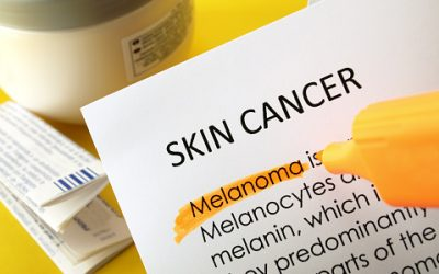 Breakthrough-in-melanoma-research-may-lead-to-new-treatment