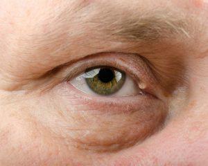 Chalazion eyelid cyst