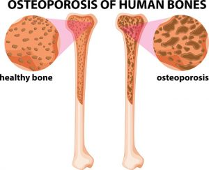 Gaps-in-osteoporosis-treatment-uncovered