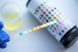 Glycosuria (glucose in urine)