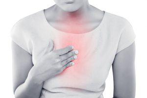 Heartburn or heart attack