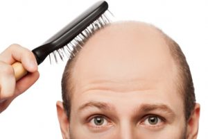 Losing your hair Genetics may be to blame