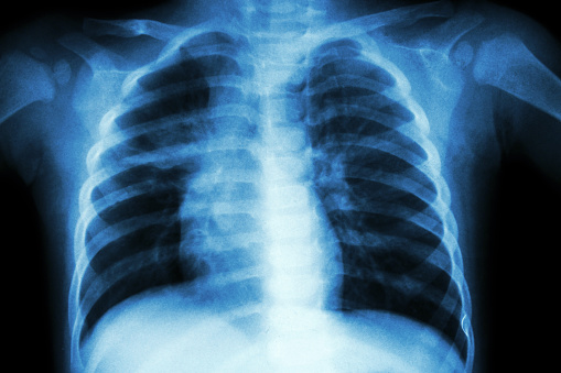 New treatment discovered for COPD and other lung diseases