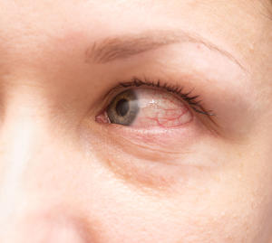 Red bloodshot eyes causes and cures