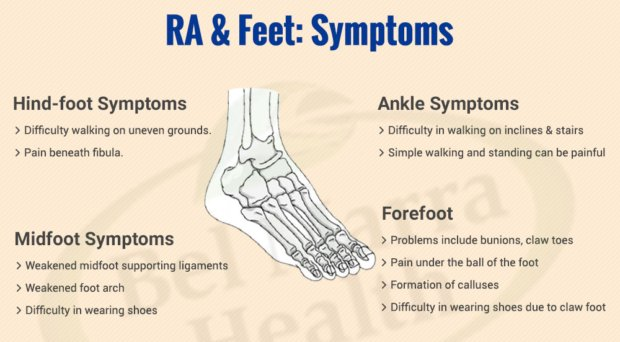 Rheumatoid Arthritis and Feet Symptoms