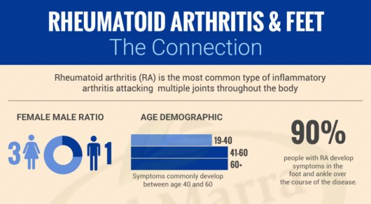 Rheumatoid-Arthritis-and-Feet-The-Connection