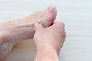 Rheumatoid arthritis and feet