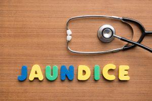 liver-disease-symptoms-jaundice