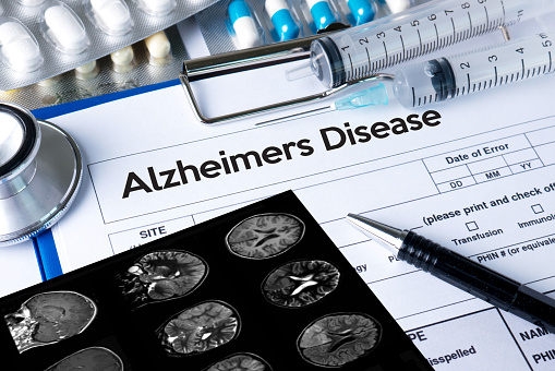wearable-devices-help-prevent-dementia-alzheimers