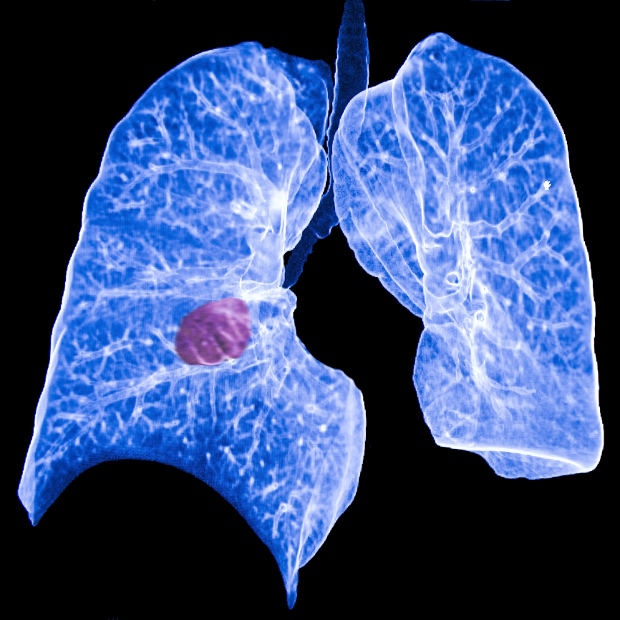 Nasal swab may be useful in confirming lung cancer diagnosis