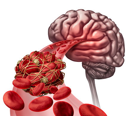 What causes blood clots in the brain