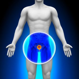 factors putting you at risk for prostate cancer