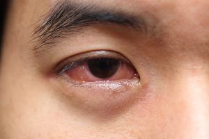 mucus in eye