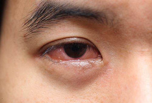 What Causes Mucus In Eye  Eye Discharge  And How To Get