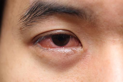 mucus in eye