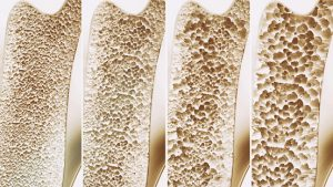 osteoporosis fractures deadlier in men