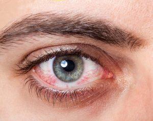 vision loss diabetics