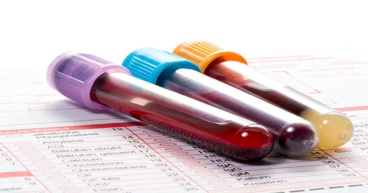 Lactate Dehydrogenase Ldh Test Preparation Risks And