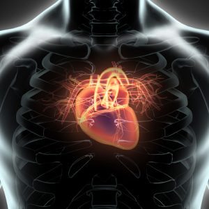 cardiac sarcoidisis