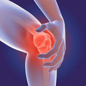 common dietary fats cause of osteoarthritis