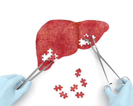 genetic link fatty liver