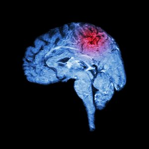 increasing rates of strokes in young adults