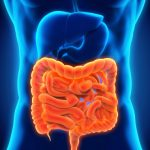 What is redundant colon? Diet and treatment tips to follow