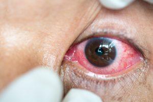 Shingles In The Eye Herpes Zoster Symptoms