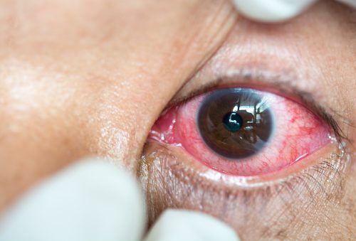 shingles in the eye herpes zoster symptoms complications