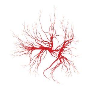spider angioma