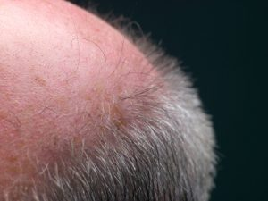 accidental discovery baldness